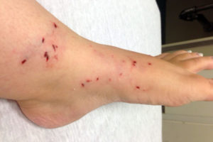 Ankle and foot of woman bit by raccoon (photo courtesy Sandra Alboum)